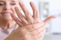 Arthritis Naturally