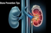 Kidney Stone Prevention Tips